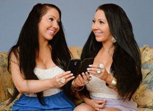 Для идеальной схожести близнецы заплатили хирургам $250.000