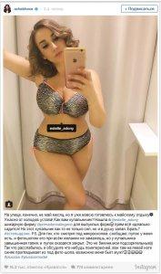 Синяк на теле Чеховой стал предметом бурного обсуждения в Инстаграм