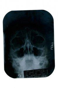 Рентген-снимки открывают тайны Мэрилин Монро