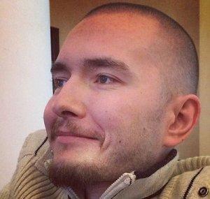 Россиянину пересадят голову на «новое» тело